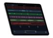 https://img.audiofanzine.com/images/u/product/thumb1/audiokit-pro-l7-looper-282778.png